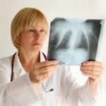 Як проводиться рентген маткових труб?