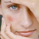 Як прибрати судинну сітку на обличчі і тілі