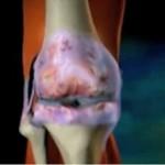 Артрит при неспецифічних запальних захворюваннях кишечника